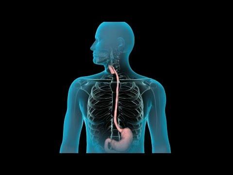 Upper GI Endoscopy | Nucleus Health