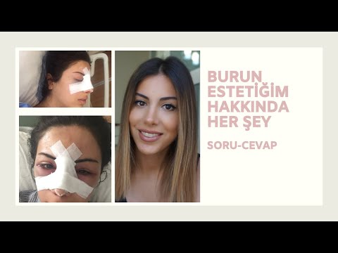 Estetik Burun Ameliyatım / Soru - Cevap