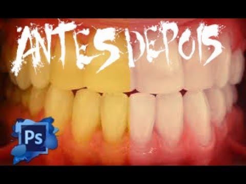 Como Clarear Dentes No Photoshop Em Menos De Cinco Minutos Youtube