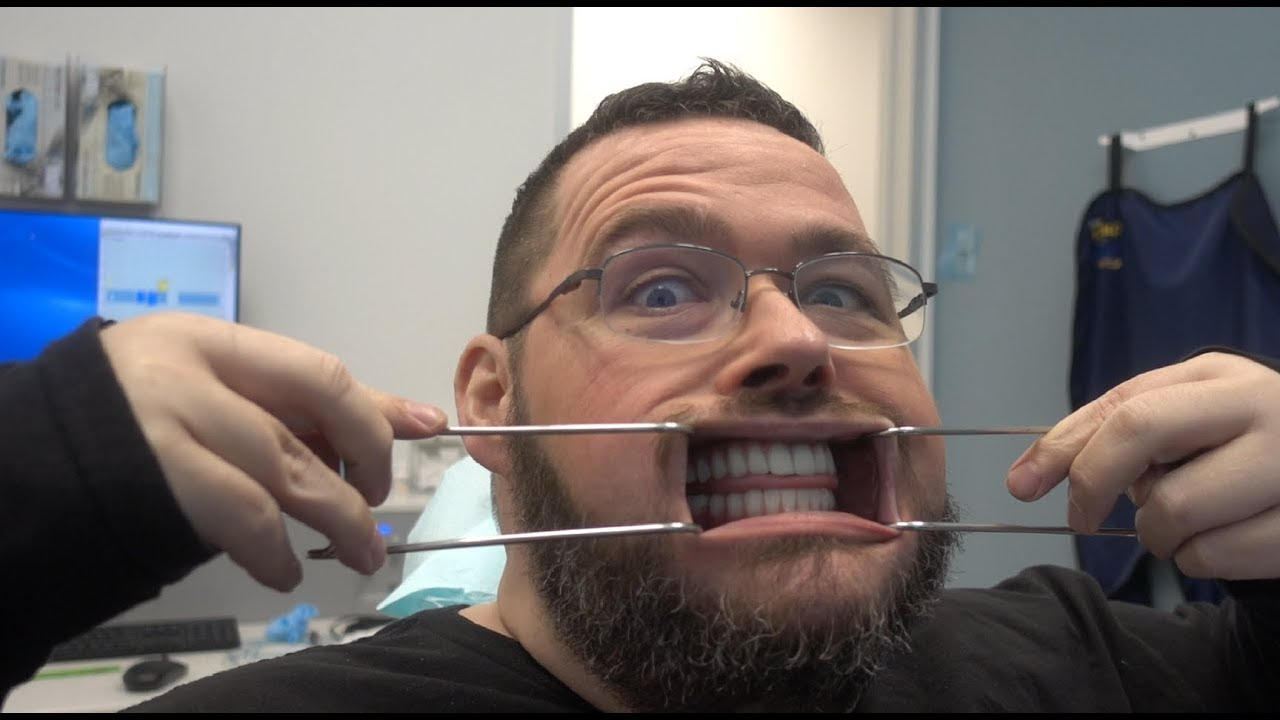FINALLY Getting My Teeth Fixed! Getting FULL Dental Implants by G4byGolpa!