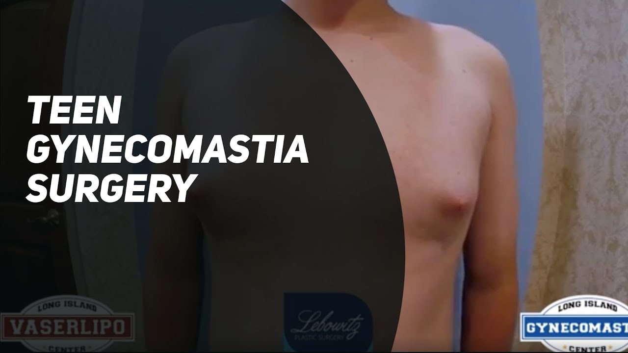 14 Year Old w/ Puffy Nipples Gets VaserLipo & Gynecomastia Surgery by Dr. Lebowitz Huntington NY