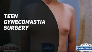 14 Year Old w/ Puffy Nipples Gets VaserLipo & Gynecomastia Surgery by Dr. Lebowitz Huntington NY