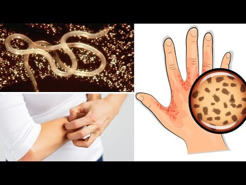 Everyone Should Watch Out For These 8 Signs of Parasitic Infection!