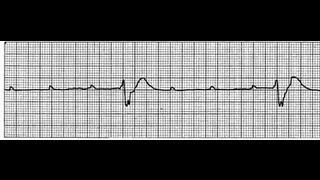 Heart Block, Side Effects of Angiogram Explained By Mohanan