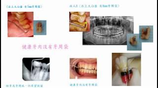 31   醫藥人 楊幽幽 檢查牙齒包括牙周檢查 以牙周探針探測牙周 Editor-in-chief Online Journal of Dentistry u0026 Oral Health