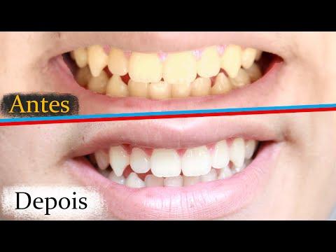 3 Formas De Clarear Os Dentes Em Casa Rapido E Barato Youtube