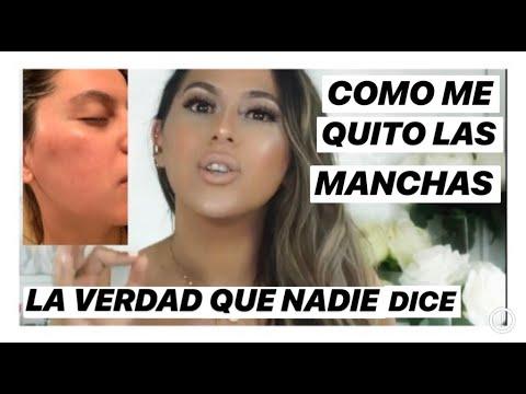 COMO QUITAR LAS MANCHAS DE LA CARA/MELASMA/ EL PAÑO/ LINREVE / HYPERPIGMENTATION/ JACKIE HERNANDEZ