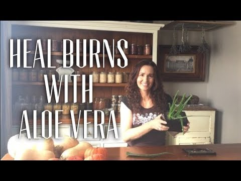 How to heal a burn with Aloe Vera