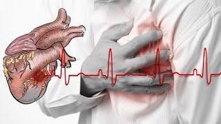 40% от хипертониците не се лекуват правилно