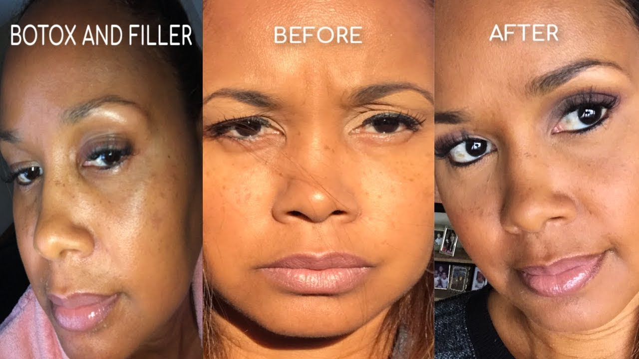 Before And After Botox And Filler Eyebrow Lift Youtube
