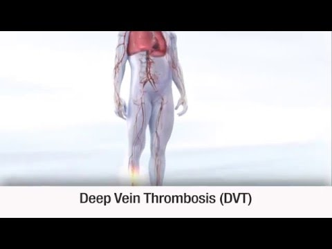 Treatments for VTE