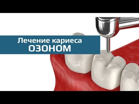 Кариес в стадии пятна - лечение белых пятен на зубах