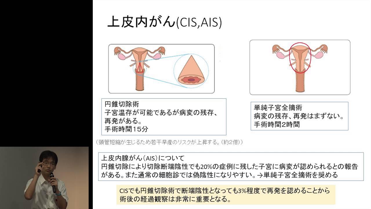 切除 術 後 円錐 子宮頸がん・子宮頸部円錐切除術術後の経過(退院~退院後1ヶ月)!