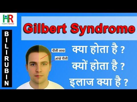 Gilbert Syndrome In Hindi | Gilbert Syndrome Causes In Hindi | Gilbert Syndrome Treatment In Hindi