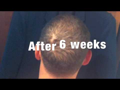 Minoxidil (Rogaine) - A Quick How to Guide with Before & After results