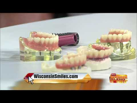Your Different Options for Dental Implants