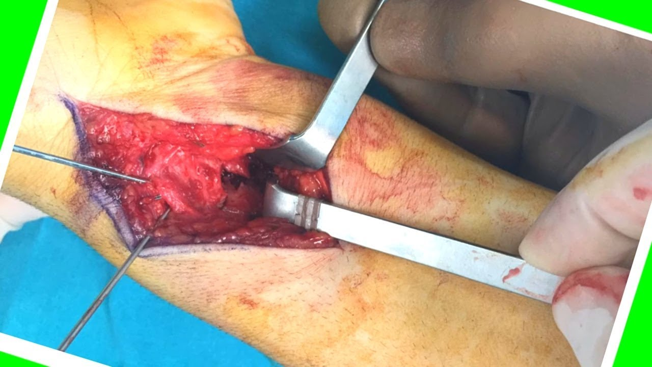 Distal Radius Melon Type  IV  Fracture (Large Displaced Volar Fragment )