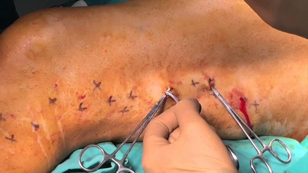 varicose phlebectomy)