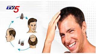 Suggestions For Hair Transplantation   Sriroop Clinic   13 june 2017    Health File   TV5 News