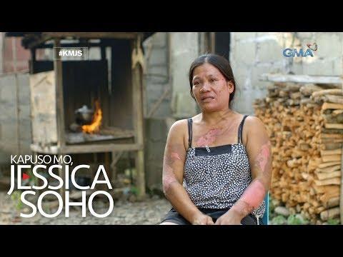 Kapuso Mo, Jessica Soho: Misis, binuhusan ng kumukulong tubig ng kanyang mister!
