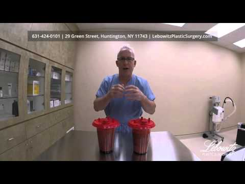 Laser Smart Liposuction Explained by Dr. Lebowitz in Huntington Long Island NY