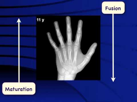 Bone age assessment