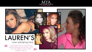 Lauren Goodger's Rhinoplasty Story Thumbnail