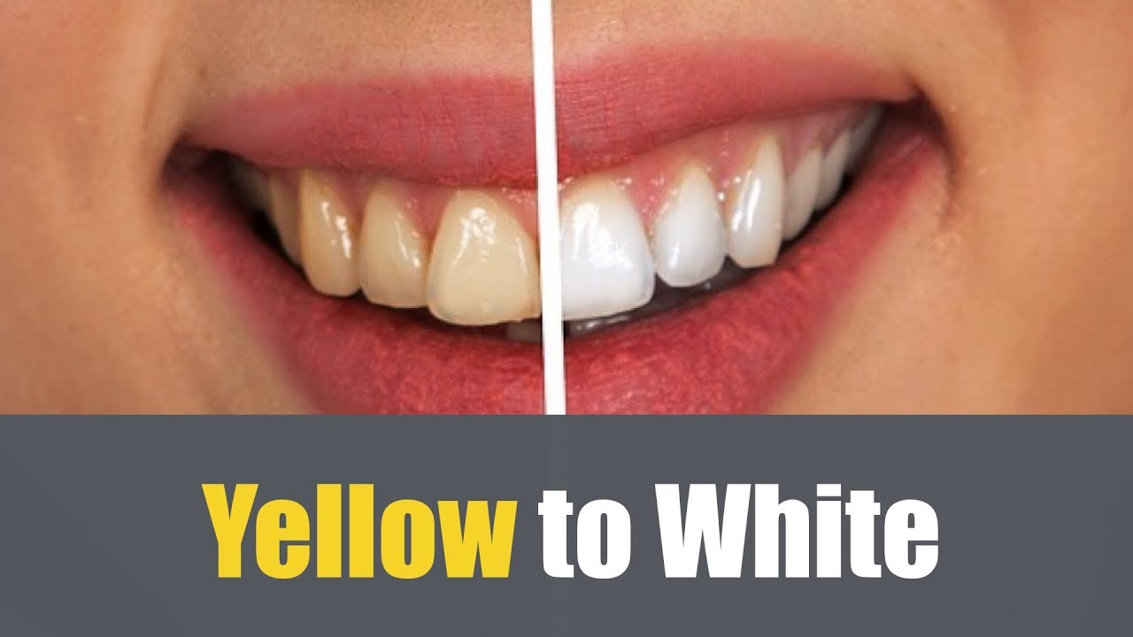 Foods That Make Your Teeth White
