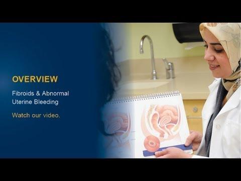 understanding-fibroids-and-abnormal-uterine-bleeding