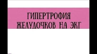 Расшифровка ЭКГ при гипертрофии желудочков - meduniver.com