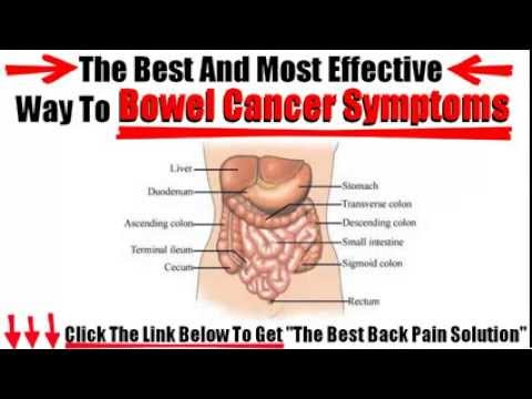 bowel cancer symptoms - youtube, Human Body