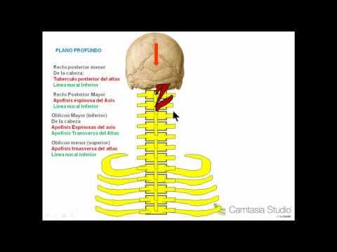 Que curar los dolores de cabeza de la osteocondrosis