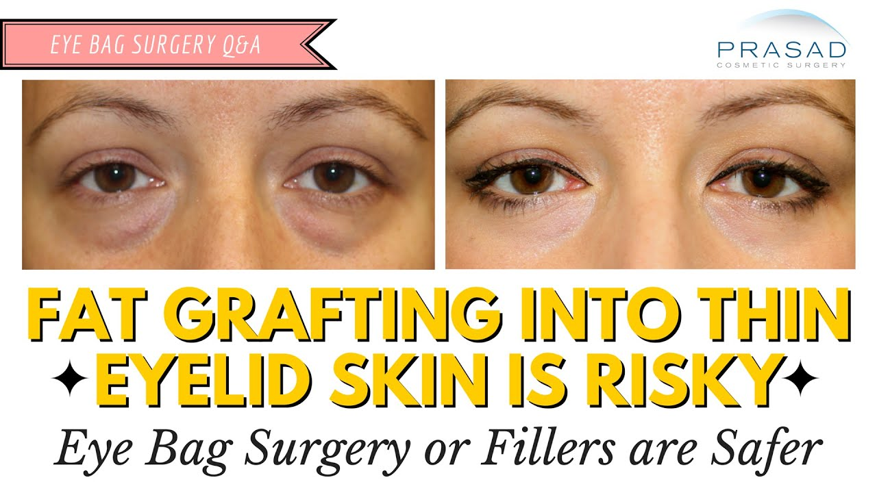 Fat Grafting is Not Advised in Thin Eyelid Skin - Safer Options for Eye Bag  Treatment