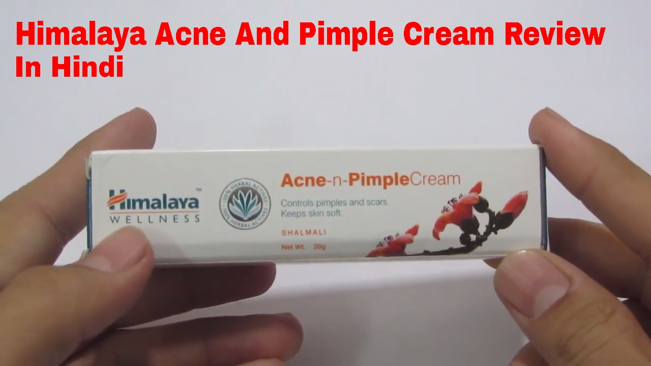 Himalaya Acne n Pimple Cream Review In Hindi 2017 - YouTube
