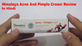Himalaya Acne n Pimple Cream Review In Hindi 2017