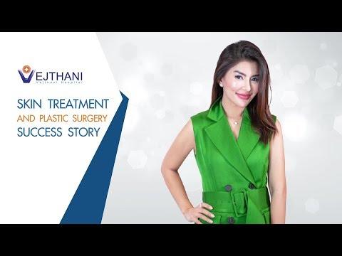 Skin Treatment And Plastic Surgery Success Story L Vejthani Hospital