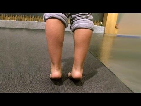 tratamento-do-pé-chato-em-crianças- -clínica-do-corpo