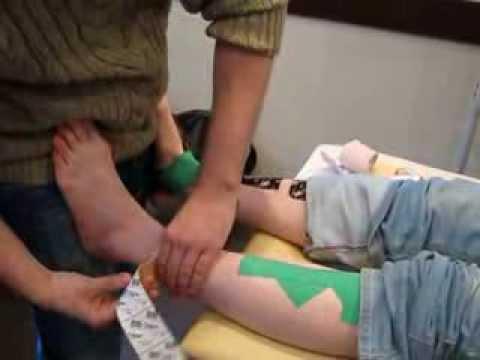 Перелом лодыжки. Лечение перелома лодыжки со смещением