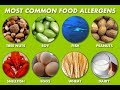 Types of Food allergies? Causes, Signs and Symptoms of Food allergy