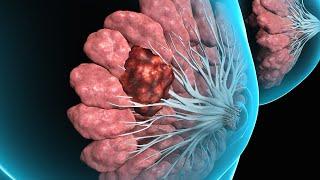 Breast Tissue Biopsy (2008)