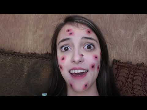 Kaelyn Has A VERY Weird Illness! from YouTube · Duration:  11 minutes 5 seconds