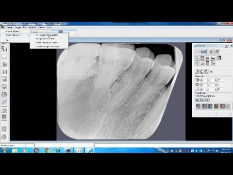 How To Export Photo Of Teeth From Xray Program Dbswin Youtube
