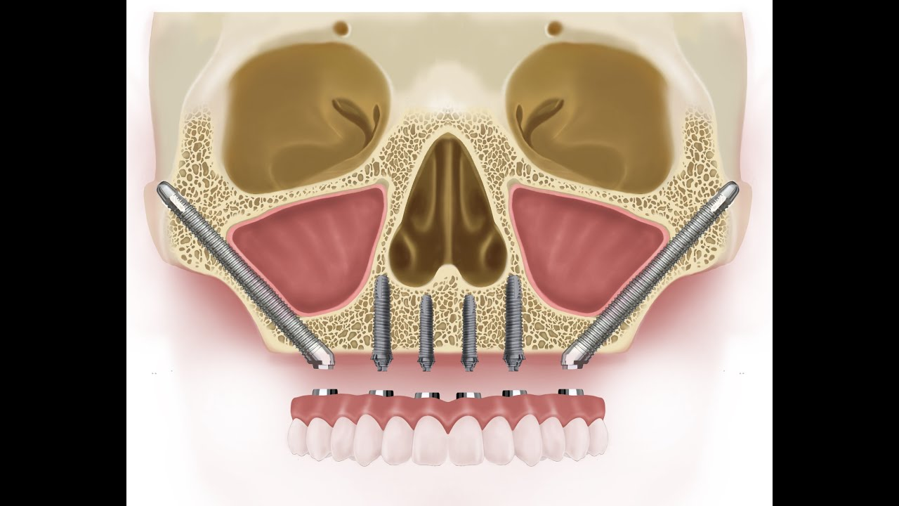 hight resolution of zygomatic dental implants costs 12702 in italy