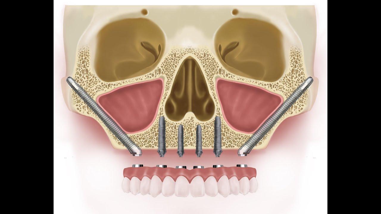 zygomatic dental implants costs 12702 in italy [ 1280 x 720 Pixel ]