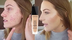 hqdefault - Best Lancome Foundation For Acne Prone Skin