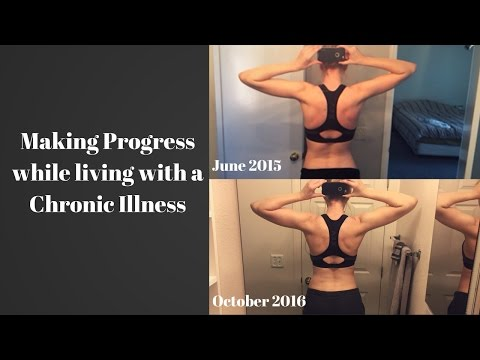 Exercising with a Chronic Illness   Making Fitness Accessible