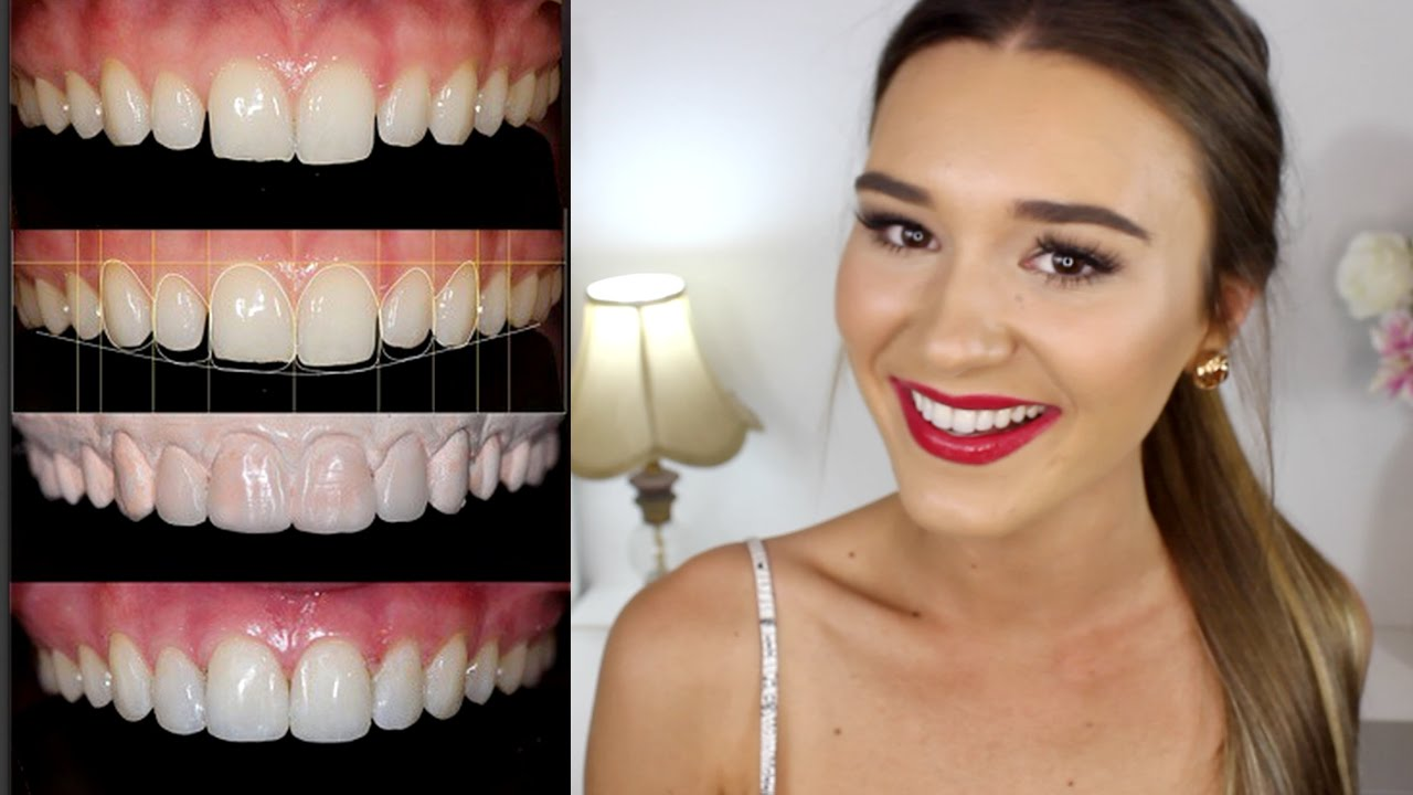 All About My Teeth Transformation Teethtalk Vloggest He was born in thailand on july 20, 1982. all about my teeth transformation