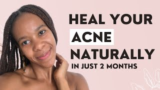 HOW I HEALED MY ACNE WITHOUT A DERMATOLOGIST AFTER STRUGGLING FOR YEARS (FEEL CONFIDENT AGAIN)