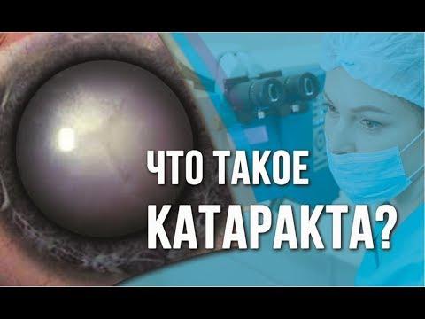 Что такое КАТАРАКТА? Симптомы катаракты. Лечение катаракты в Москве.