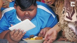 Morbidly Obese Boy Who Once Weighed 423 Pounds Gets Weight Loss Surgery